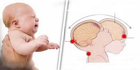 نوزاد خود را هرگز شدید تکان ندهید!