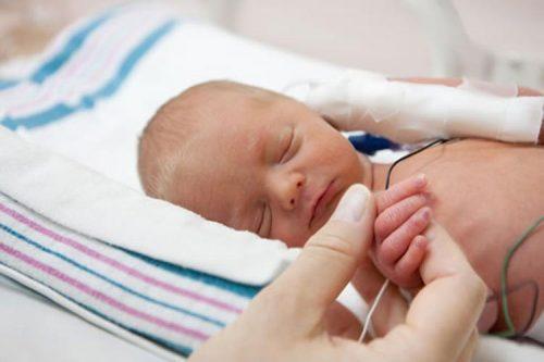 مراقبت از نوزادان نارس