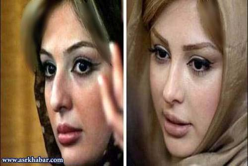 عکس های قبل و بعد از عمل جراحی بازیگران زن مشهور