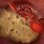 آنچه باید در مورد کلسترول خون بالا باید بدانیم