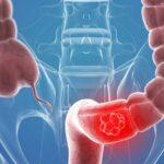 تغییر در اجابت مزاج و سرطان روده