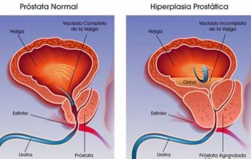 بیماری مردانه پروستات