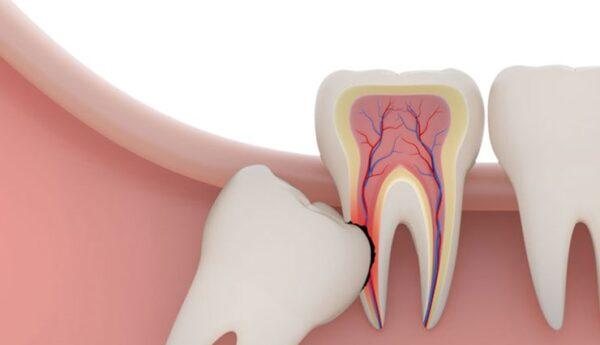 بعد کشیدن دندان عقل