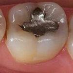 مراحل پر کردن و ترمیم دندان پوسیده