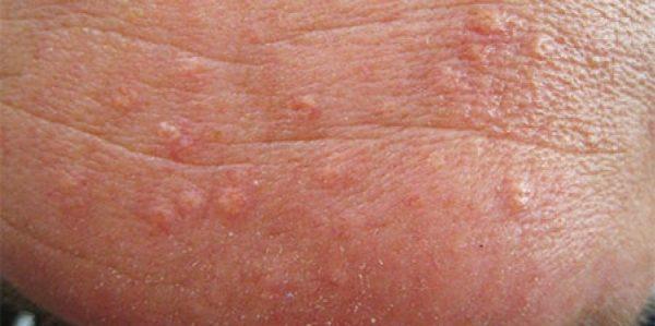 انواع زگیل های پوستی