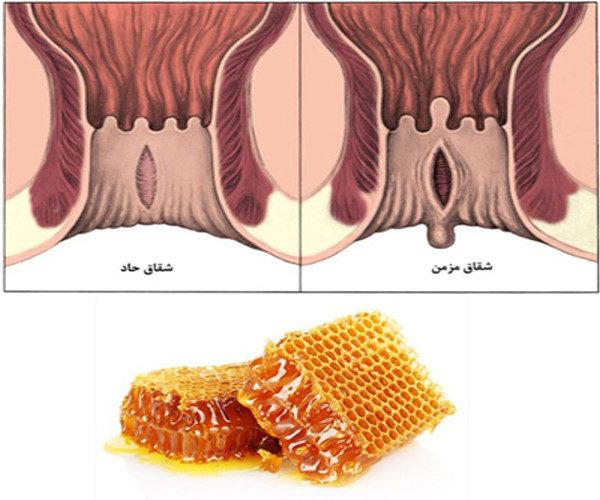 درمان بیماری بواسیر