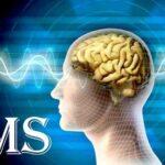 مهمترین علامت ام اس و آیا این بیماری در زنان بیشتر مردان است