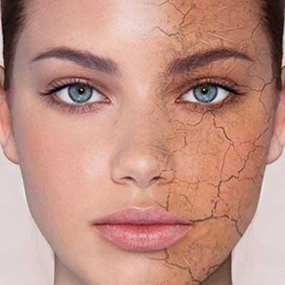رهایی از خشکی پوست