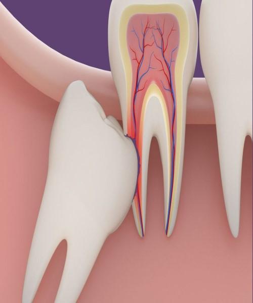 بعد از کشیدن دندان عقل چه کنیم ؟