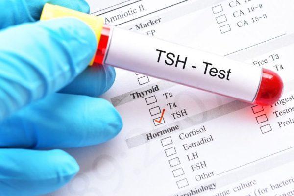 راهنمای تفسیر نتایج آزمایش خون