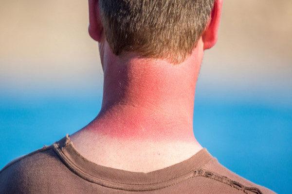پیشگیری از آفتاب سوختگی