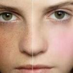۱۵ راه حل معجزه آسا برای درمان کـک و مـک
