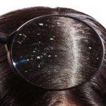 تشخیص شپش سر از شوره سر