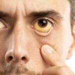 دلیل زردی چشم ها چیست