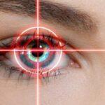 دیدن جرقه های نورانی در چشم را جدی بگیرید