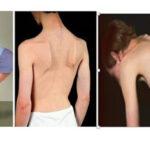 بیماری نادر پمپه که منجر به اختلالات عضلانی و حرکتی می شود