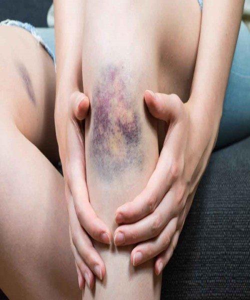 علت خونمردگی و کبودی چیست