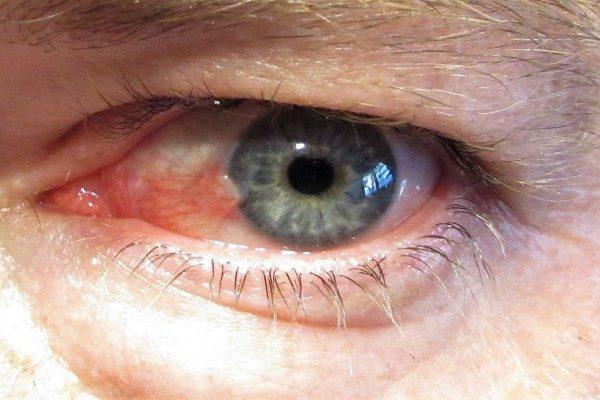 ناخنک چشم در تابستان شایعتر است