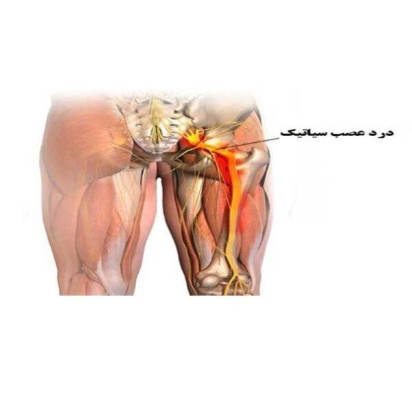 ۱۳ ورزش برای درد سیاتیک