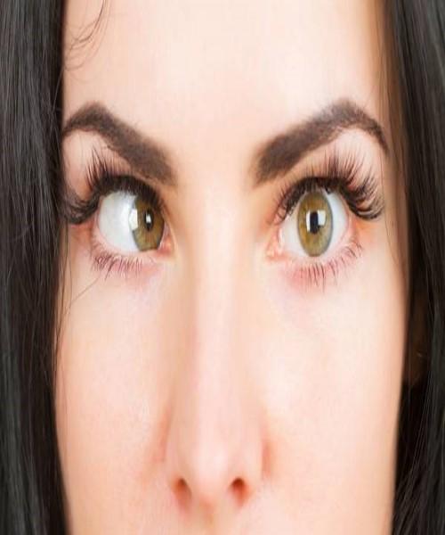 درمان انحراف چشم چیست؟