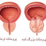 بزرگی پروستات با سرطان پروستات فرق دارد