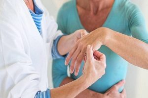 تاثیر وزن بر درمان روماتیسم مفصلی