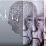نابودی آلزایمر با این ویتامین