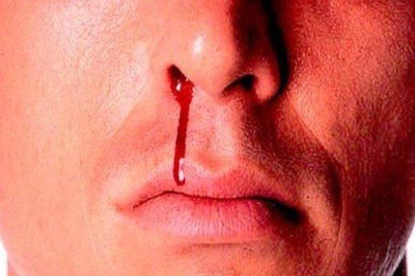 خونریزی از بینی در تابستان