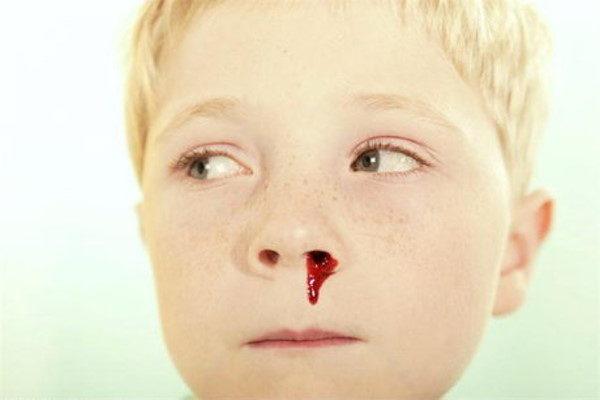 دلایل خونریزی از بینی در تابستان و گرما