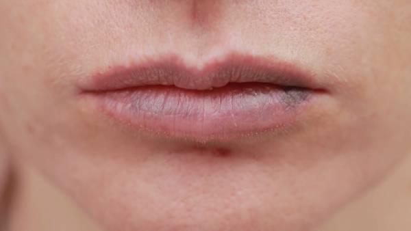 کبودی لب نشانه چیست؟