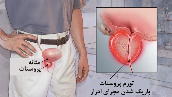 علت التهاب پروستات