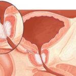 دلایل التهاب پروستات و جلوگیری از آن