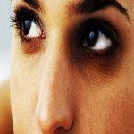 گودی دور چشم نشانه چه بیماری هایی ست؟