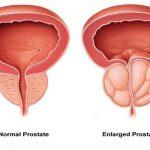 بزرگی پروستات ؛ یک درد و شش درمان