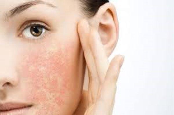خشکی پوست در فصل پاییز، علل، پیشگیری، درمان