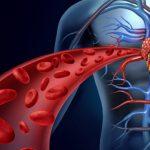 برای اینکه خونتان کثیف نشود! با این راهکارها خون خود را تصفیه کنید!