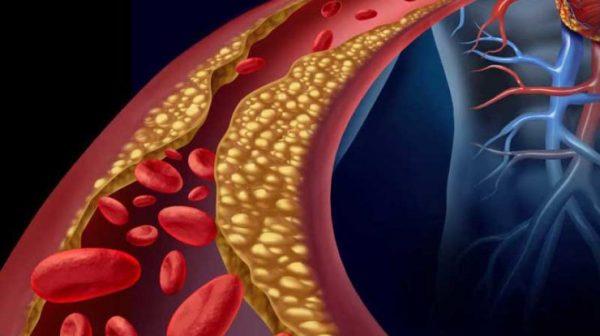 روش های تصفیه خون بدن
