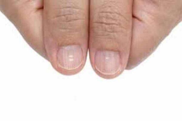 ناخن هایتان به شما چه می گویند!/ ظاهر ناخن ها نشان دهنده بیماری ها!
