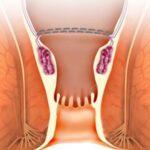 علل و راه های درمان اجابت مزاج با درد و خونریزی