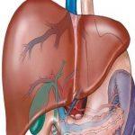 درمانهای طبیعی برای بیماران کبدی / رژیم غذایی برای کسانی که کبد چرب دارند!