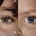 با عکاسی سرطان چشم را تشخیص دهید!/ چشمانتان در عکس چگونه است ؟!+ تصاویر