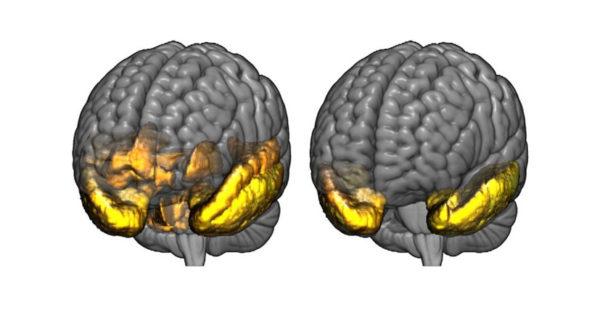 کوچک شدن مغز