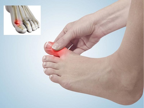 علت درد شصت پا و درمان آن