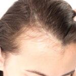 روش های موثر در درمان ریزش مو