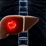 علل ابتلا به سرطان کبد
