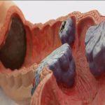 علائم سرطان روده بزرگ را بشناسید