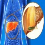 روش هایی مناسب برای درمان کبد چرب