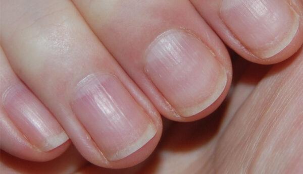 علت لکه های سفید ناخن