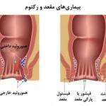علائم و نشانه های بواسیر و روش های درمان