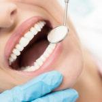 ۱۰ نکته مهم که باید در مورد دندان و دندانپزشکی بدانیم